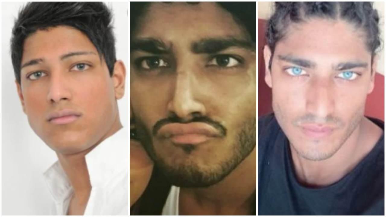 Akash Kumar prima della chirurgia